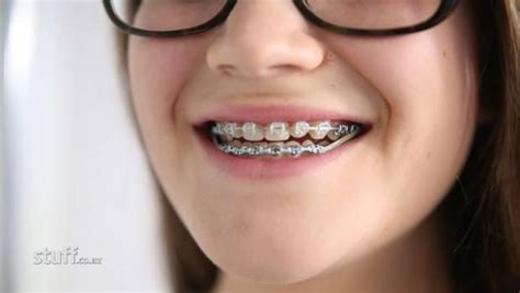 How much do braces cost for 13 year olds - ALQURUMRESORT