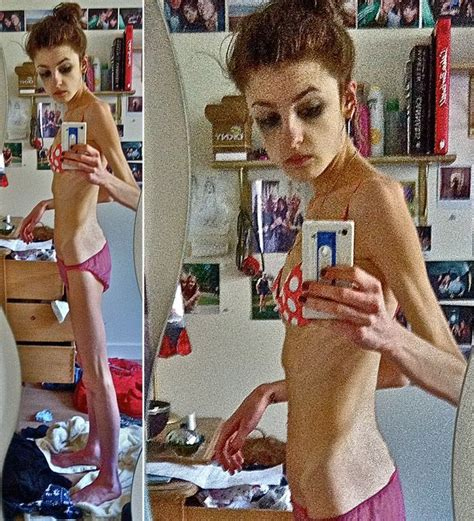 'I hated my body': Student developed anorexia after one