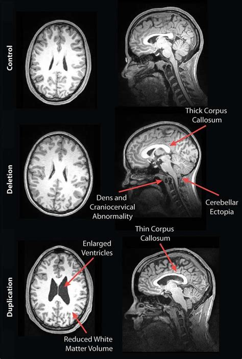 MRI Reveals Striking Brain Differences in People With
