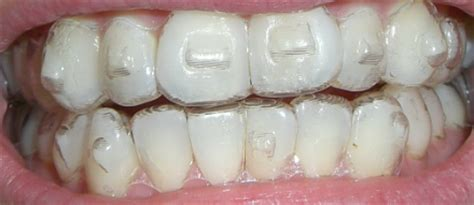Brehs and brehettes, whats good with Invisalign? | Sports
