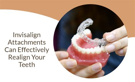 Invisalign Attachments Can Effectively Realign Your Teeth