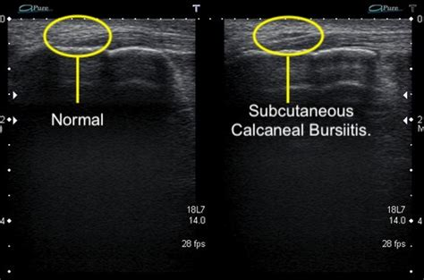 Subcutaneous Calcaneal Bursitis - Ankle, Foot and Orthotic